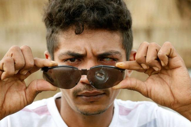 O sem-terra Francinaldo Souza da Costa, de 25 anos, mostra os óculos atingidos por balas que teriam sido disparadas por homens da empresa Atalaia Segurança e Vigilância, no Acampamento Helenira Resende, em Marabá. Dida Sampaio / Estadão